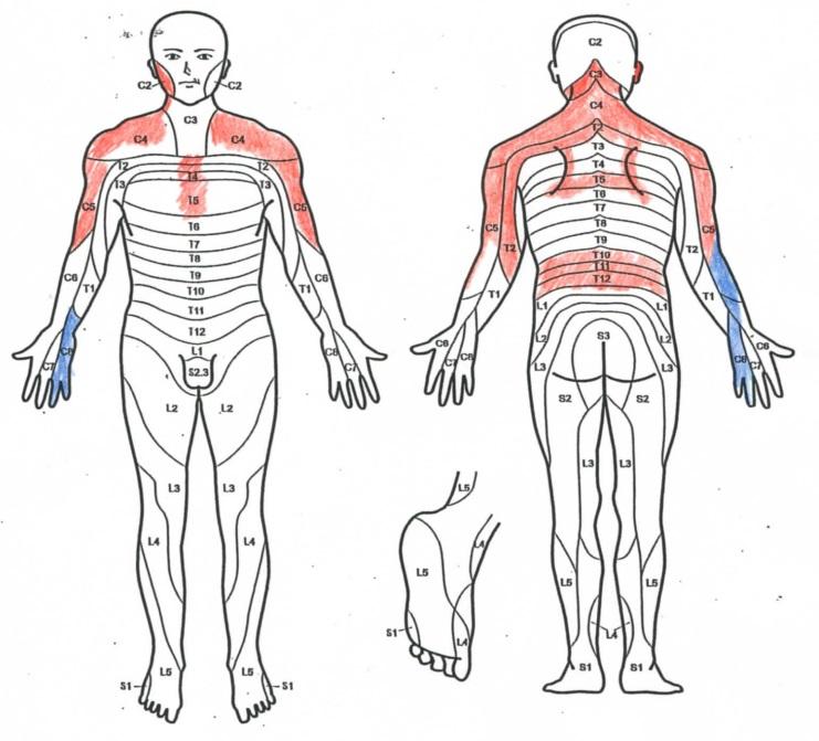 ピリピリ 背中 痛い が