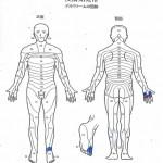 手足のシビレ、背中・肩・腕のヒリヒリ感