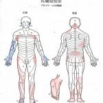 身体、右足の痛み、両手のシビレ