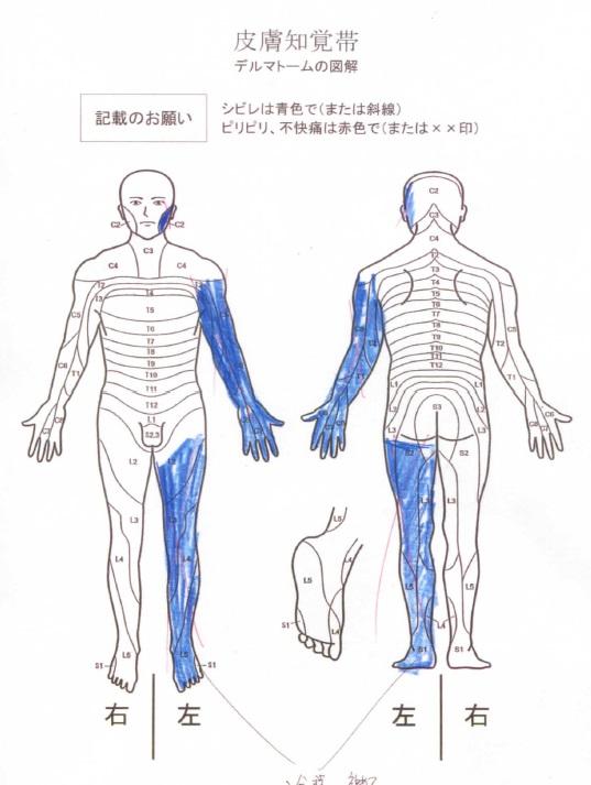 する 皮膚 が ピリピリ