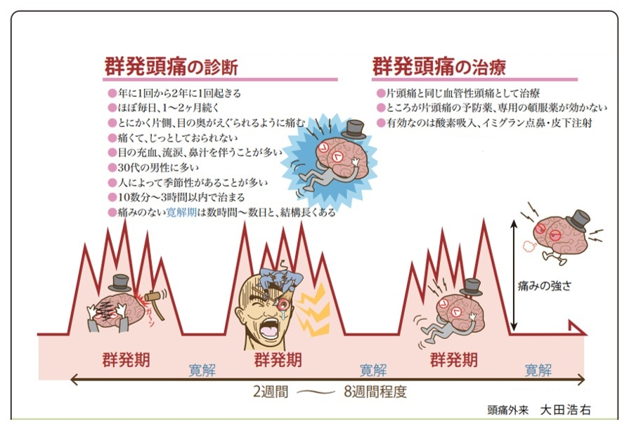 群発 頭痛